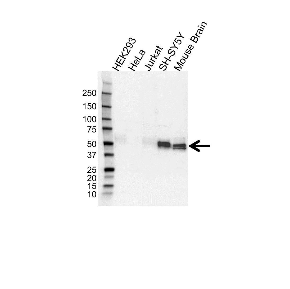 Microtubule Associated Protein tau Antibody (PrecisionAb<sup>TM</sup> Antibody) gallery image 1