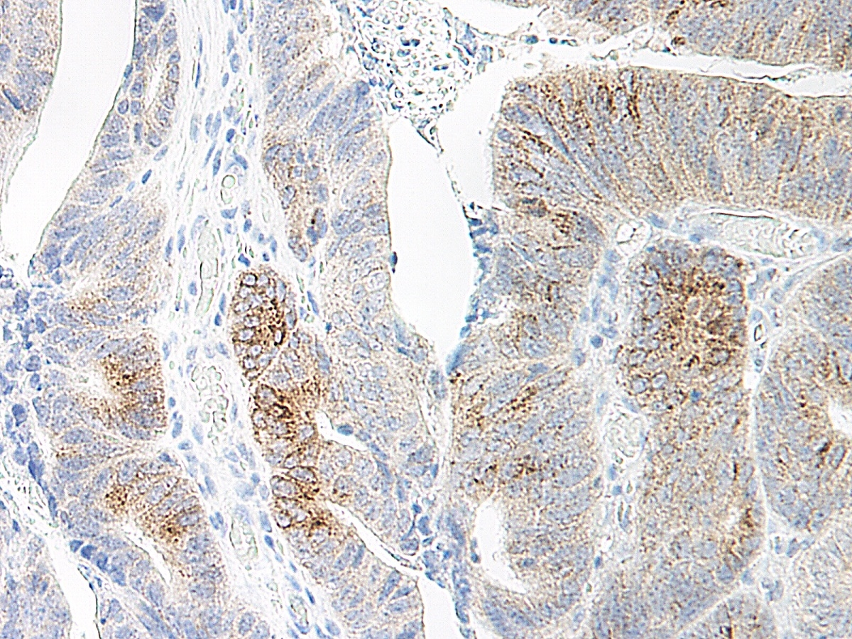 MIP-3 Alpha Antibody gallery image 1