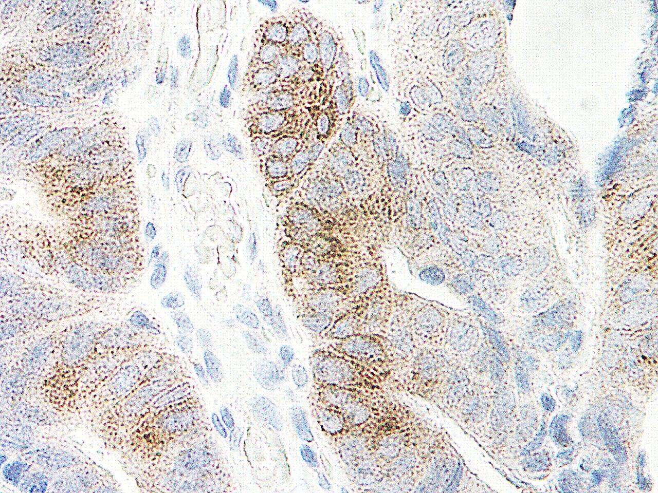 MIP-3 Alpha Antibody gallery image 2