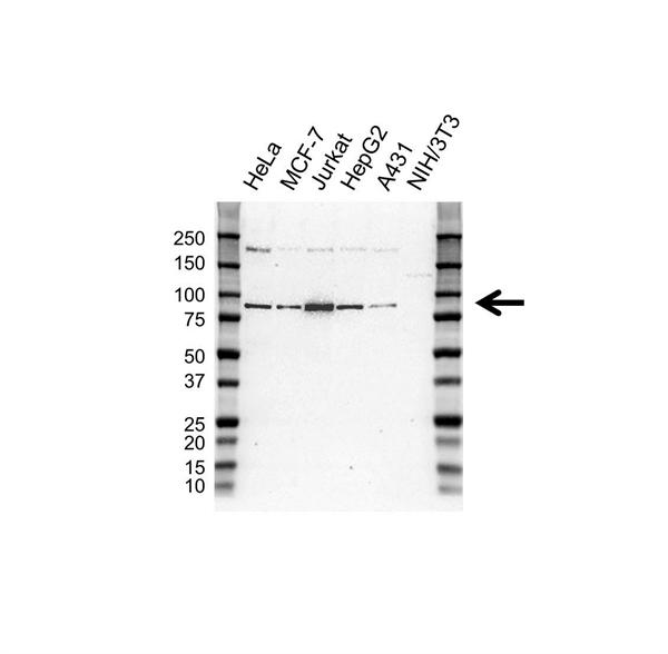 MLH1 Antibody (PrecisionAb<sup>TM</sup> Antibody) | UMAB191 gallery image 1