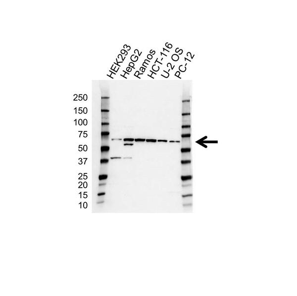 MMP-3 Antibody (PrecisionAb<sup>TM</sup> Antibody) gallery image 1