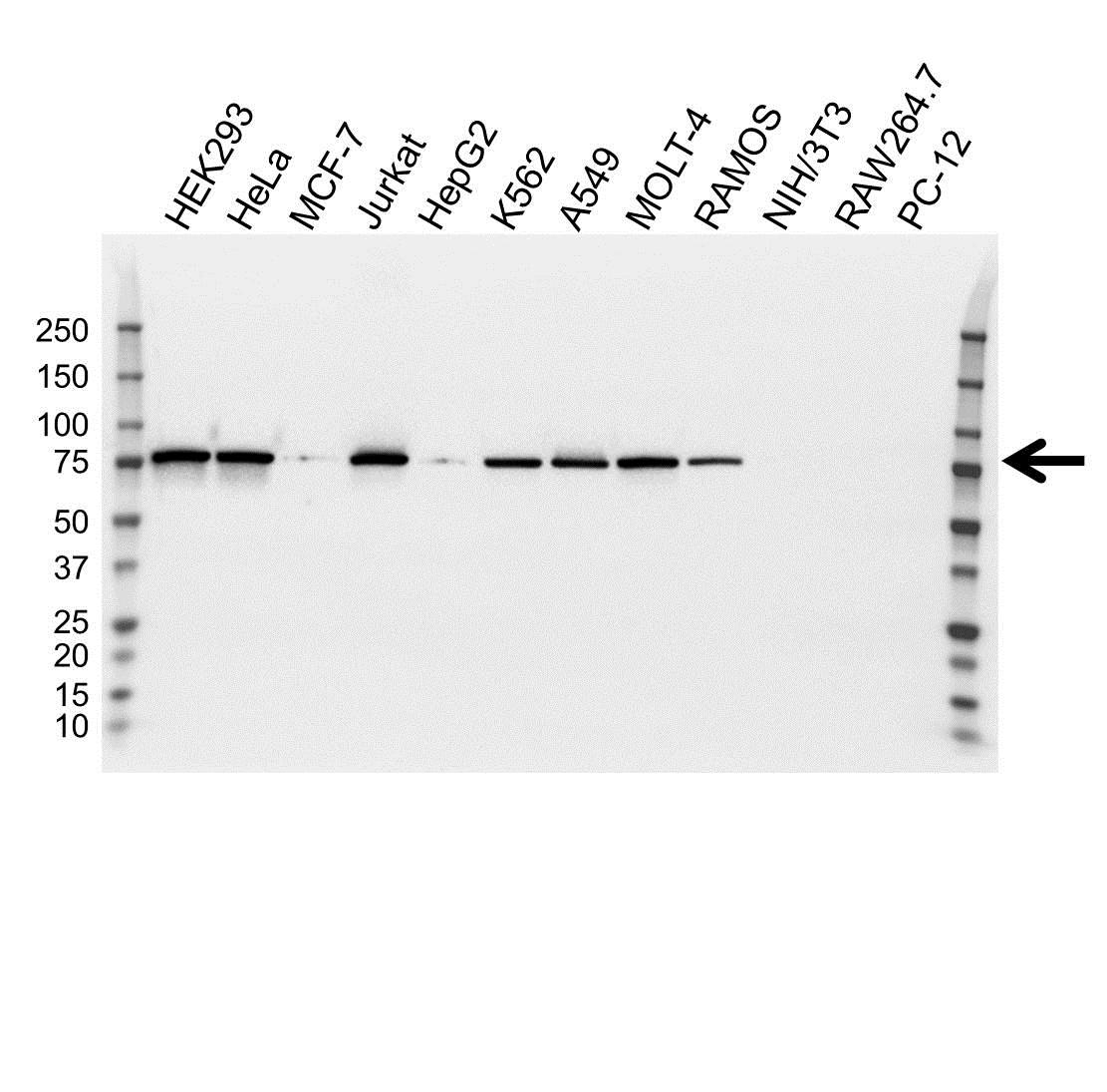 Moesin Antibody (PrecisionAb<sup>TM</sup> Antibody) gallery image 1