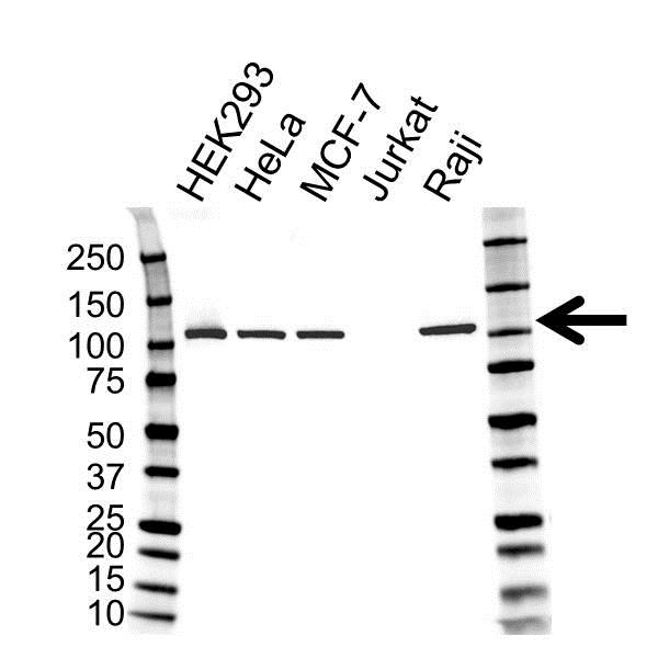 MSH2 Antibody (PrecisionAb<sup>TM</sup> Antibody) gallery image 1