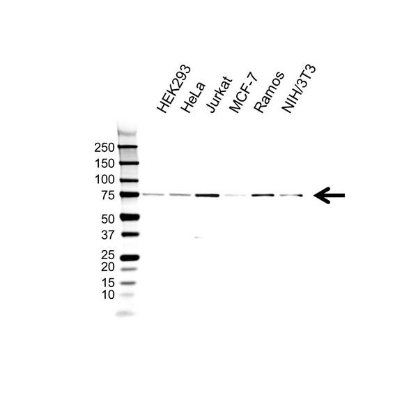 MTA1 Antibody (PrecisionAb<sup>TM</sup> Antibody) gallery image 1