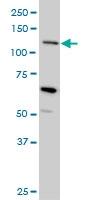 Mucin 4 Antibody | 5B12 gallery image 2