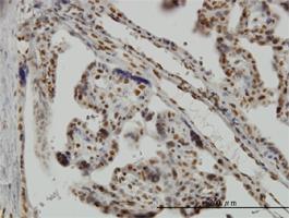 Musashi-1 Antibody | 3F2 gallery image 1