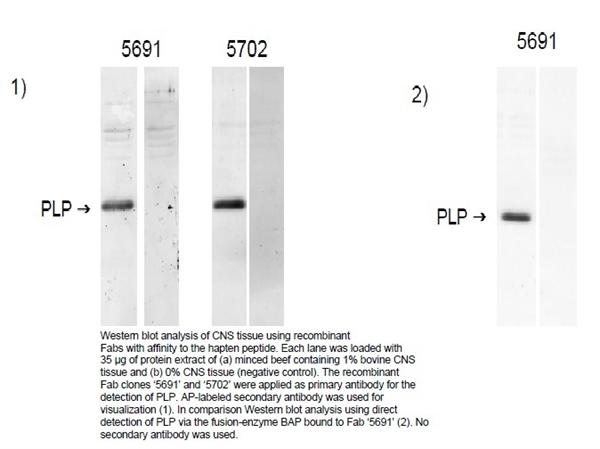 Myelin Proteolipid Protein Antibody | 5691 gallery image 2