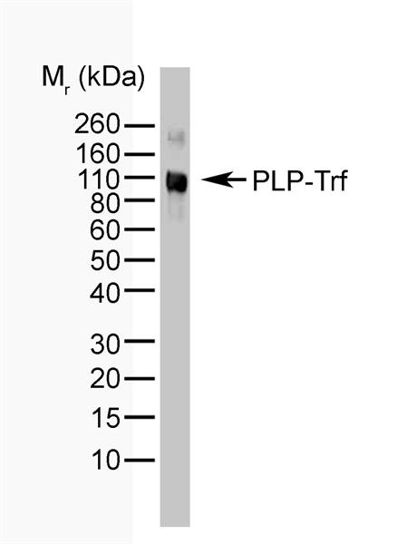 Myelin Proteolipid Protein Antibody | 5691 gallery image 1
