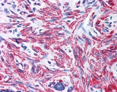 Myosin Antibody gallery image 1