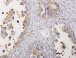 Myosin Heavy Chain 9 Antibody | 4H3 gallery image 1
