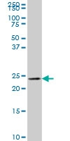 Myosin Light Chain 6B Antibody | 4G11 thumbnail image 1