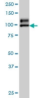 NDST1 Antibody | 1G10 gallery image 1