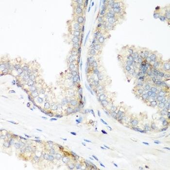 NEDD4 Antibody gallery image 2