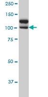 NEK9 Antibody | 1F6 gallery image 2