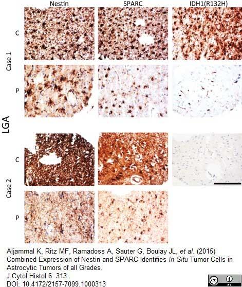 Nestin Antibody | 10C2 gallery image 5