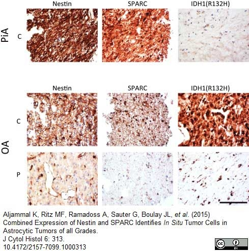 Nestin Antibody | 10C2 gallery image 4