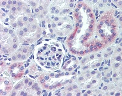 Nestin Antibody gallery image 2