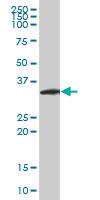 Neurogenin 2 Antibody | 2A8 gallery image 1