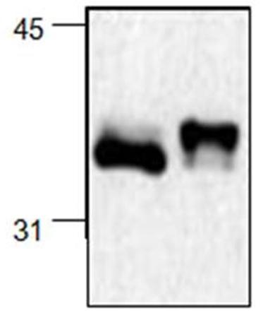NF Kappa B Inhibitor Alpha Antibody   6A055 gallery image 1
