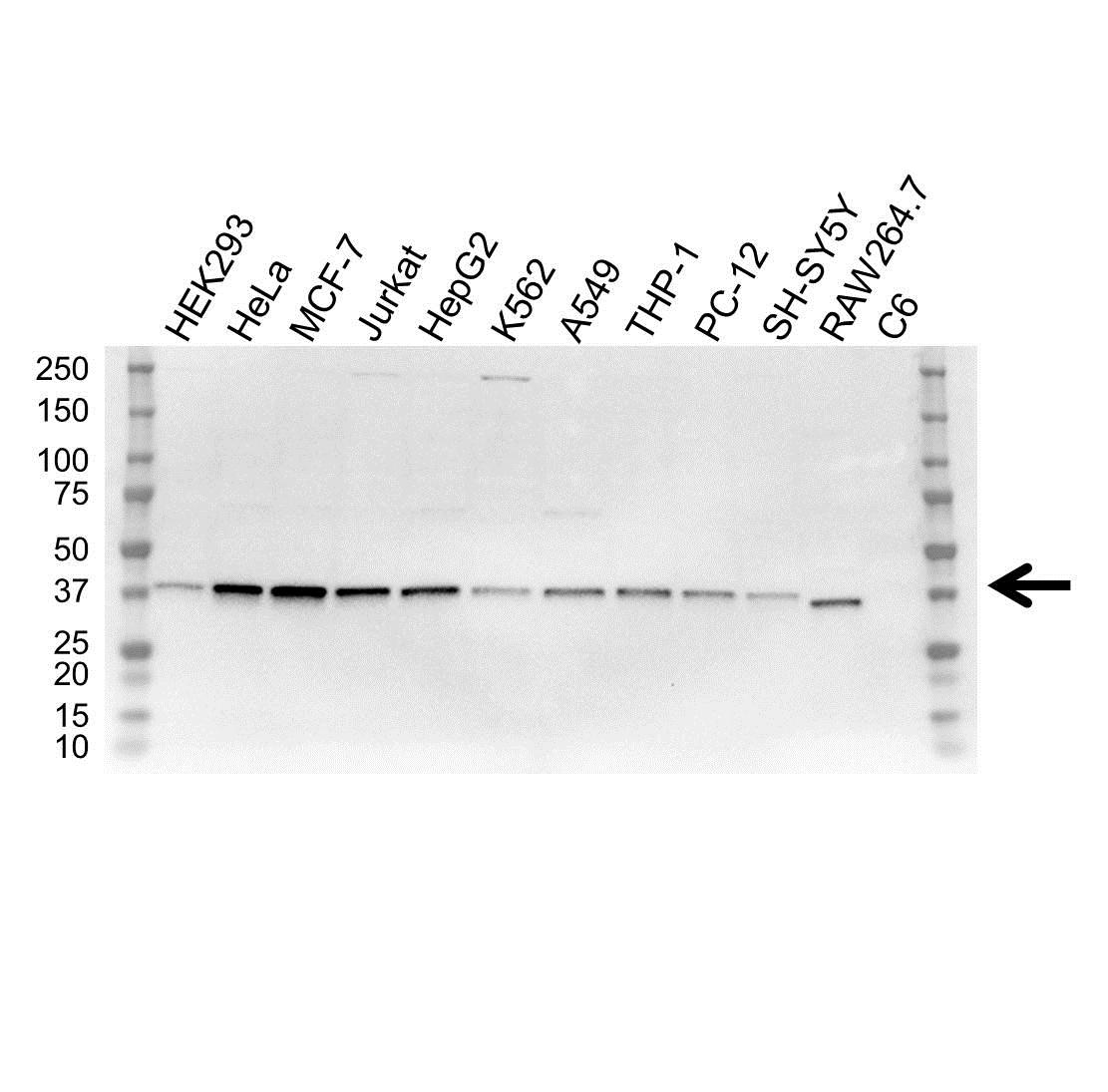 NF Kappa B Inhibitor Alpha Antibody (PrecisionAb<sup>TM</sup> Antibody)   OTI1D4 gallery image 1