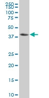 NF Kappa B Inhibitor Beta Antibody | 3E11 gallery image 1