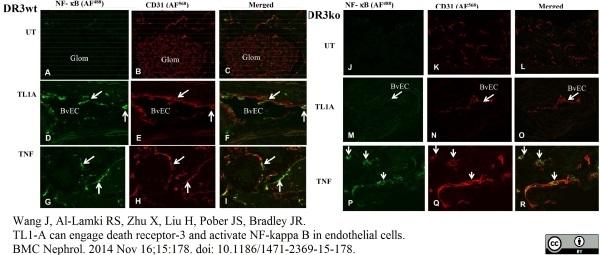 NFkB p65 Antibody gallery image 2