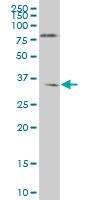 NKX6-1 Antibody | 1B7 gallery image 1