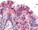 NOXO1 Antibody thumbnail image 1
