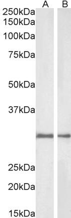 NQO1 Antibody gallery image 2