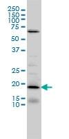 NSG1 Antibody | 1C3 gallery image 1