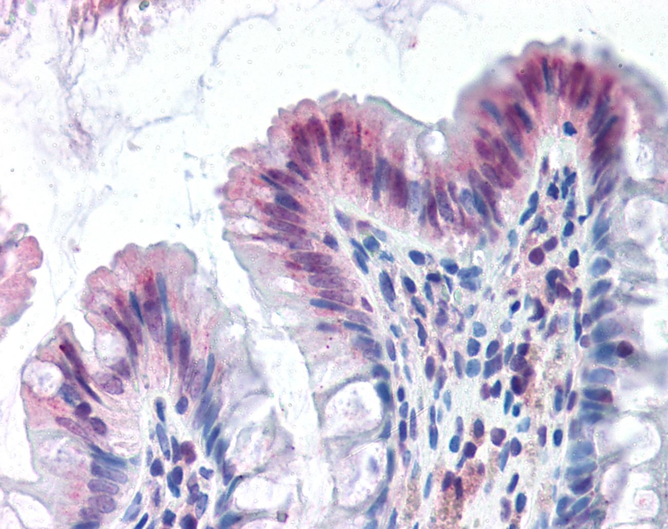 OAS1 Antibody gallery image 1