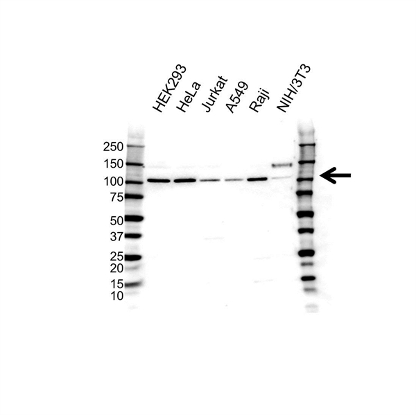 Oncostatin M Receptor Antibody (PrecisionAb<sup>TM</sup> Antibody) gallery image 1