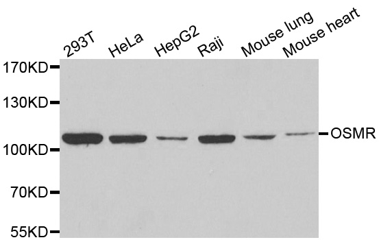 Oncostatin M Receptor Antibody gallery image 1