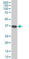 Osteopontin Antibody   1F5 gallery image 1