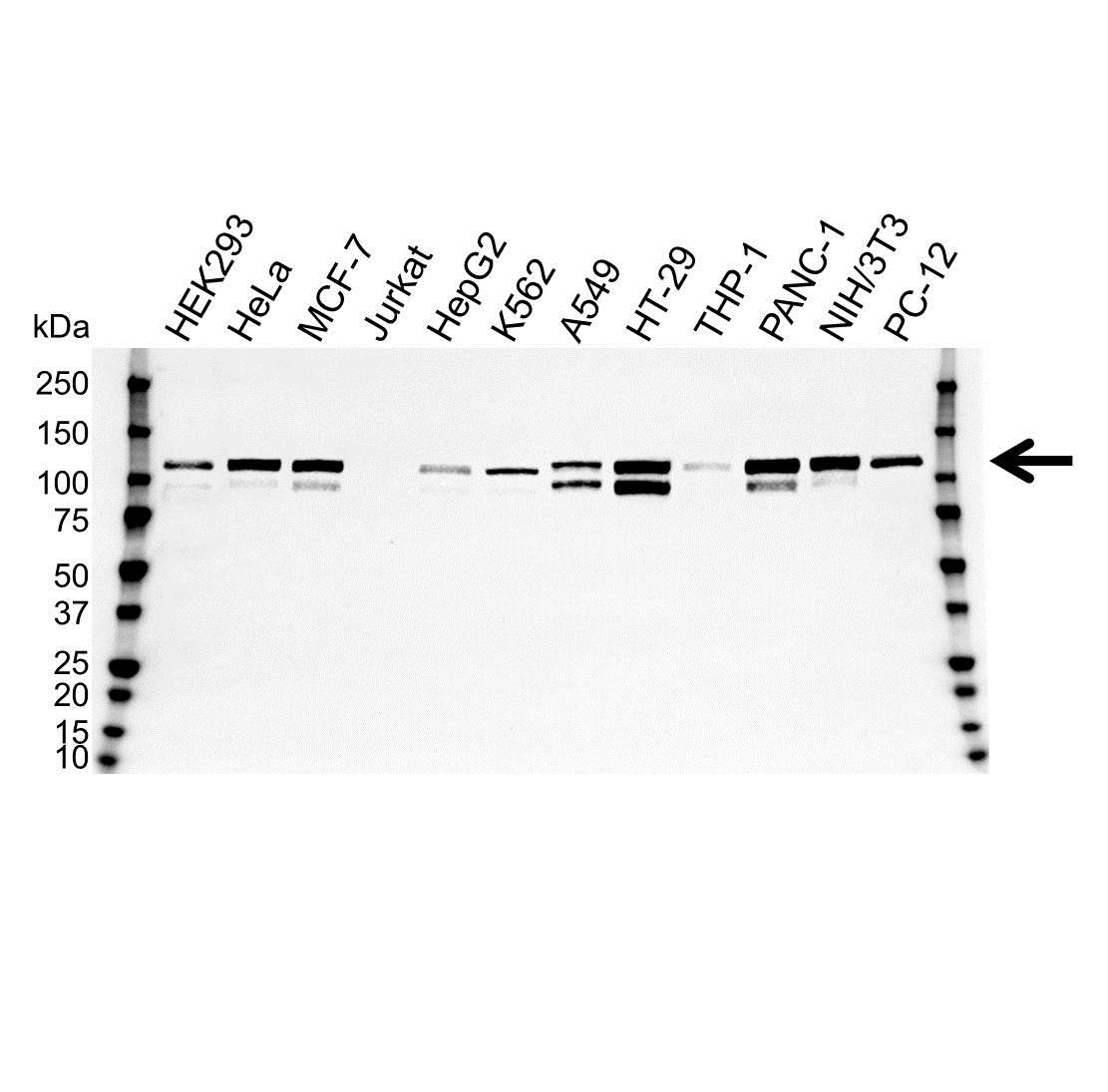 p130Cas Antibody (PrecisionAb<sup>TM</sup> Antibody)   OTI3A11 gallery image 1