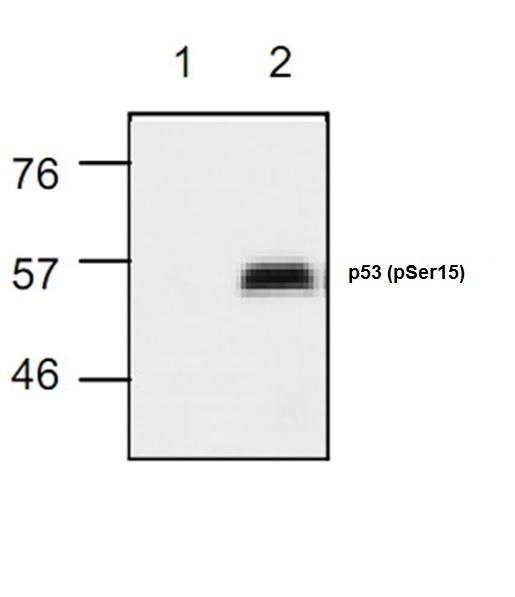 p53 (pSer15) Antibody gallery image 1