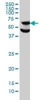 p70S6K Antibody | 1E12 gallery image 1
