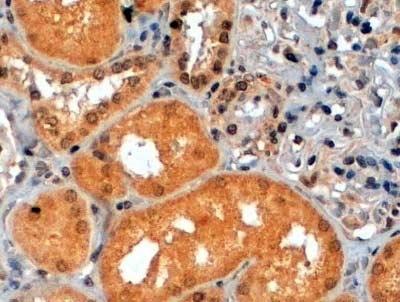 p70S6K Antibody gallery image 4