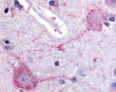 PACE4 Antibody gallery image 1
