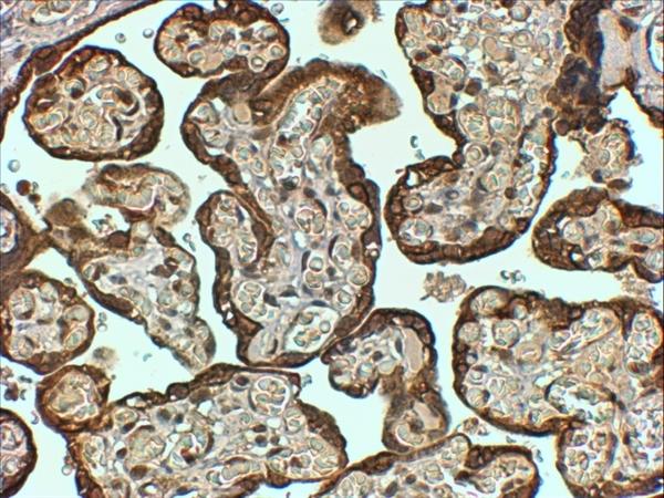 PAI-1 Antibody gallery image 3
