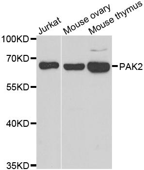 PAK2 Antibody gallery image 1