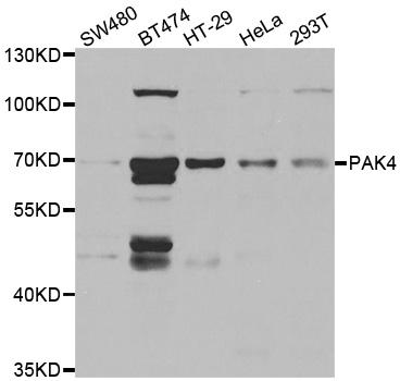 PAK4 Antibody gallery image 1