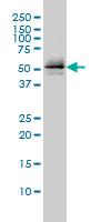 Parkin Antibody | 1H4 gallery image 1