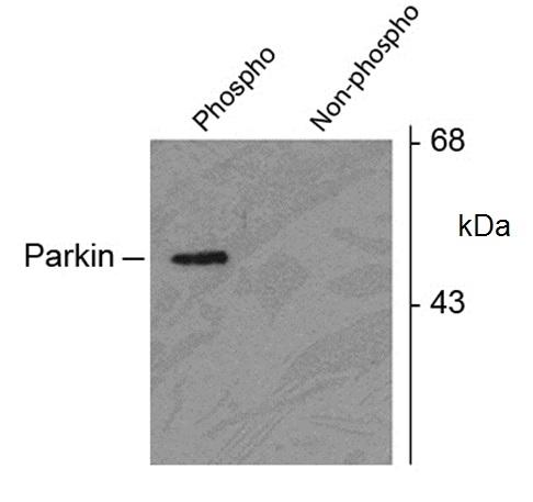 Parkin (pSer378) Antibody gallery image 1