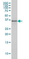PARVG Antibody | 4E1 gallery image 1