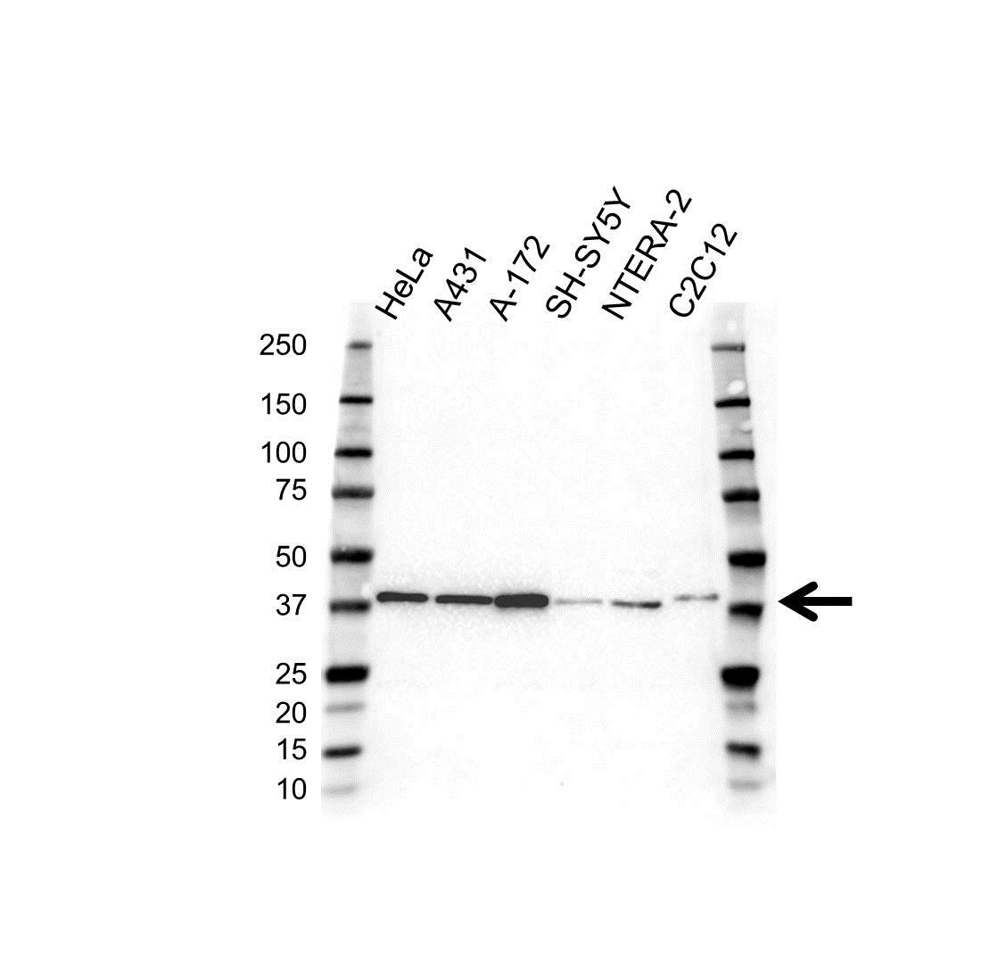 PCBP1 Antibody (PrecisionAb<sup>TM</sup> Antibody) gallery image 1