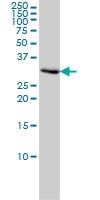 PCNA Antibody | 1G7 gallery image 1