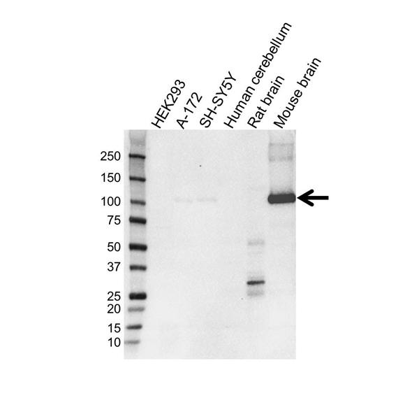 PDE2A Antibody (PrecisionAb<sup>TM</sup> Antibody) | OTI1G9 gallery image 1