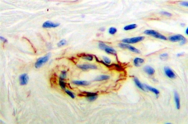 PDGF Antibody gallery image 3