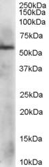 PDIA3 Antibody gallery image 1